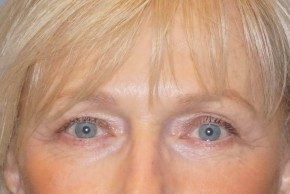 After Photo - Eyelid Surgery - Case #16027 - Upper/Lower Eyelid Surgery 26 - Frontal View