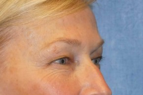 Before Photo - Eyelid Surgery - Case #16027 - Upper/Lower Eyelid Surgery 26 - Lateral View