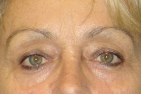 Before Photo - Eyelid Surgery - Case #16028 - Eyelid Surgery 29 - Frontal View