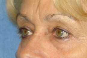 Before Photo - Eyelid Surgery - Case #16028 - Eyelid Surgery 29 - Oblique View