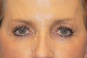 Before Photo - Eyelid Surgery - Case #16030 - Upper & Lower Eyelids 31 - Frontal View