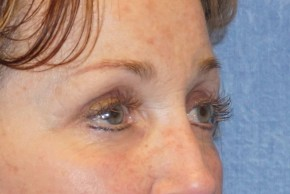 After Photo - Eyelid Surgery - Case #16030 - Upper & Lower Eyelids 31 - Oblique View