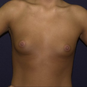 Before Photo - Breast Augmentation - Case #16209 - Breast implant surgery - Frontal View