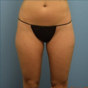 Before Photo - Liposuction - Case #16237 - Cellulaze Lateral Thighs & Banana Roll - Frontal View