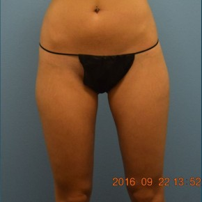 After Photo - Liposuction - Case #16237 - Cellulaze Lateral Thighs & Banana Roll - Frontal View