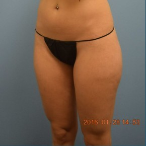 Before Photo - Liposuction - Case #16237 - Cellulaze Lateral Thighs & Banana Roll - Oblique View