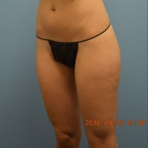 After Photo - Liposuction - Case #16237 - Cellulaze Lateral Thighs & Banana Roll - Oblique View
