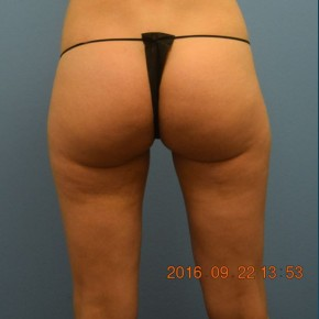 After Photo - Liposuction - Case #16237 - Cellulaze Lateral Thighs & Banana Roll - Posterior View