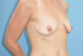 Before Photo - Breast Augmentation - Case #16238 - Oblique View