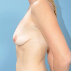 Before Photo - Breast Augmentation - Case #16238 - Lateral View