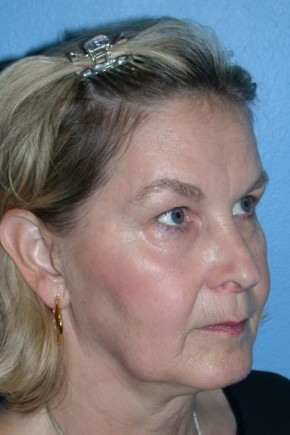 Before Photo - Facial Rejuvenation - Case #16239 - CO2 Laser For Skin Rejuvenation, Browlift, & Upper Blepharoplasty - Oblique View