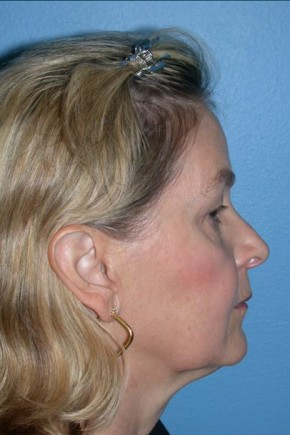 Before Photo - Facial Rejuvenation - Case #16239 - CO2 Laser For Skin Rejuvenation, Browlift, & Upper Blepharoplasty - Lateral View