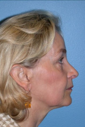 After Photo - Facial Rejuvenation - Case #16239 - CO2 Laser For Skin Rejuvenation, Browlift, & Upper Blepharoplasty - Lateral View