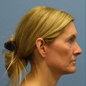 Before Photo - Facelift - Case #16240 - Minimal Access Cranial Suspension (MACS) Lift - Lateral View
