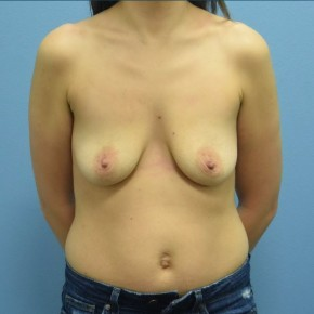 Before Photo - Breast Augmentation - Case #16241 - Breast Augmentation with Silicone Implants - Frontal View