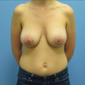 After Photo - Breast Augmentation - Case #16241 - Breast Augmentation with Silicone Implants - Frontal View
