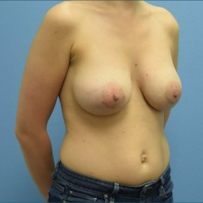 After Photo - Breast Augmentation - Case #16241 - Breast Augmentation with Silicone Implants - Oblique View
