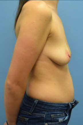 Before Photo - Breast Augmentation - Case #16241 - Breast Augmentation with Silicone Implants - Lateral View