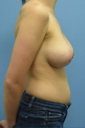 After Photo - Breast Augmentation - Case #16241 - Breast Augmentation with Silicone Implants - Lateral View