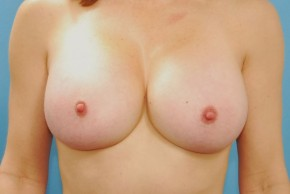 After Photo - Breast Augmentation - Case #16242 - Breast Augmentation with Silicone Implants - Frontal View