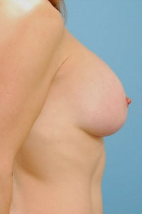 After Photo - Breast Augmentation - Case #16242 - Breast Augmentation with Silicone Implants - Lateral View