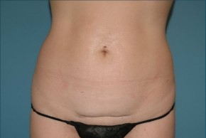 Before Photo - Tummy Tuck - Case #16243 - Abdominoplasty with Smartlipo of the Hips-flanks - Frontal View