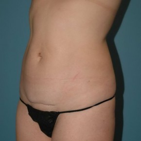 Before Photo - Tummy Tuck - Case #16243 - Abdominoplasty with Smartlipo of the Hips-flanks - Oblique View