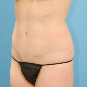 After Photo - Tummy Tuck - Case #16243 - Abdominoplasty with Smartlipo of the Hips-flanks - Oblique View