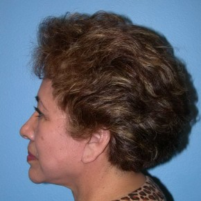 After Photo - Facelift - Case #16244 - Facelift, Necklift, & Browlift - Lateral View