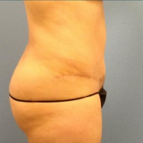 After Photo - Tummy Tuck - Case #16245 - Abdominoplasty & Smartlipo of the Hips-flanks - Lateral View