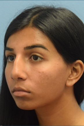 Before Photo - Nose Surgery - Case #16248 - Septorhinoplasty; Chin Augmentation with Silicone Implant - Oblique View
