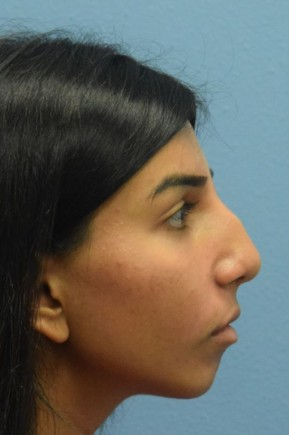 Before Photo - Nose Surgery - Case #16248 - Septorhinoplasty; Chin Augmentation with Silicone Implant - Lateral View