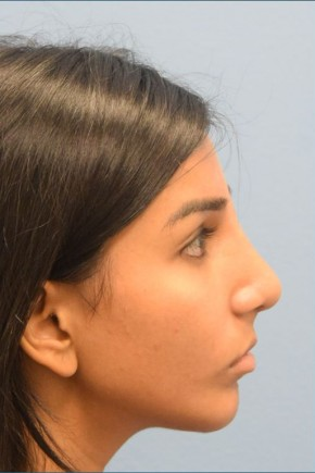 After Photo - Nose Surgery - Case #16248 - Septorhinoplasty; Chin Augmentation with Silicone Implant - Lateral View