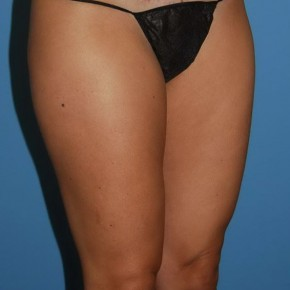 Before Photo - Liposuction - Case #16249 - Smartlipo Inner & Outer Thighs - Oblique View