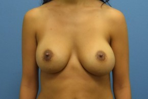Before Photo - Breast Augmentation - Case #16250 - Breast Implant Exchange from Saline to Silicone Implants - Frontal View