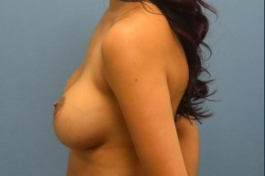Before Photo - Breast Augmentation - Case #16250 - Breast Implant Exchange from Saline to Silicone Implants - Lateral View
