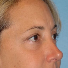 After Photo - Eyelid Surgery - Case #16251 - Upper Blepharoplasty - Oblique View