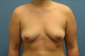 Before Photo - Breast Augmentation - Case #16253 - Breast Augmentation with Silicone Implants - Frontal View