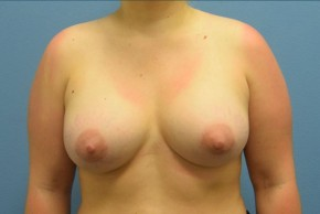 After Photo - Breast Augmentation - Case #16253 - Breast Augmentation with Silicone Implants - Frontal View