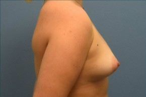 Before Photo - Breast Augmentation - Case #16253 - Breast Augmentation with Silicone Implants - Lateral View