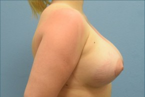 After Photo - Breast Augmentation - Case #16253 - Breast Augmentation with Silicone Implants - Lateral View