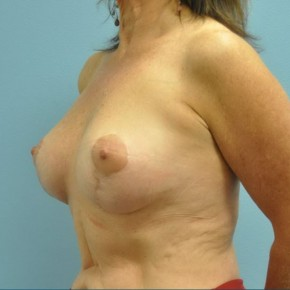 After Photo - Breast Lift - Case #16256 - Breast Augmentation & Short Scar Breast Lift - Oblique View