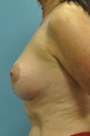 After Photo - Breast Lift - Case #16256 - Breast Augmentation & Short Scar Breast Lift - Lateral View