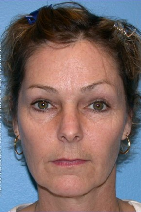 Before Photo - Facial Rejuvenation - Case #16257 - Facelift, Necklift, & Browlift - Frontal View