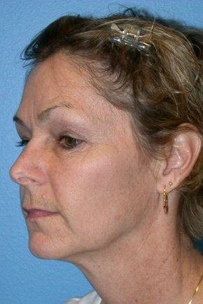 Before Photo - Facial Rejuvenation - Case #16257 - Facelift, Necklift, & Browlift - Oblique View