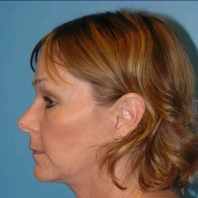 After Photo - Facial Rejuvenation - Case #16257 - Facelift, Necklift, & Browlift - Lateral View