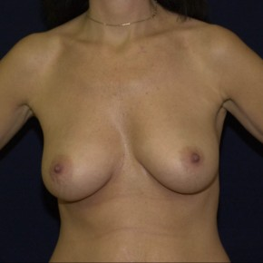 Before Photo - Buttock Augmentation - Case #16287 - Breast implant surgery - Frontal View