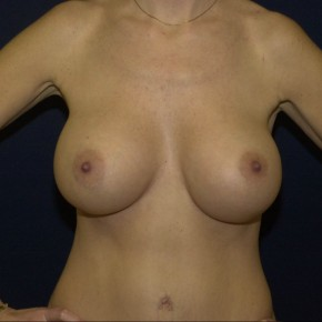 After Photo - Breast Augmentation - Case #16287 - Breast implant surgery - Frontal View