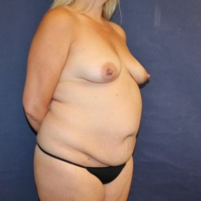 Before Photo - Mommy Makeover - Case #16344 - Mommy Makeover with Breast Augmentation and Tummy Tuck - Oblique View