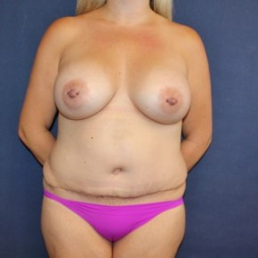 After Photo - Mommy Makeover - Case #16344 - Mommy Makeover with Breast Augmentation and Tummy Tuck - Frontal View